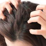 髪のフケは洗い方次第で改善できる?実はフケには種類があるんです!